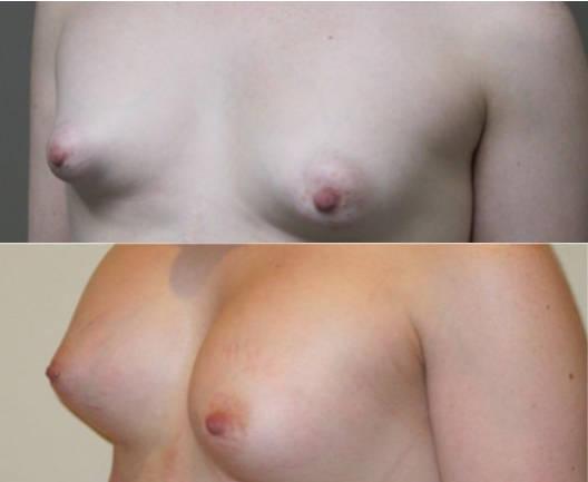 Fotos antes y despues de la cirugía de corrección de mamas tuberosas Dra. Moreda