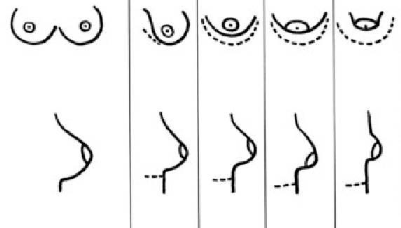 mamas tuberosas grados 1,2,3, y 4