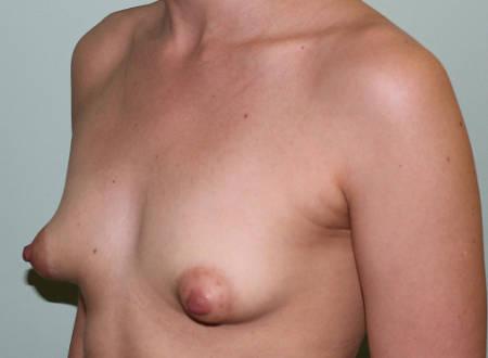Antes de la Operación de mamas tuberosas en Valencia con la Dra. Moreda