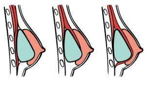 Colocacion protesis mamarias en pecho: subglandular, submuscular y dual plane