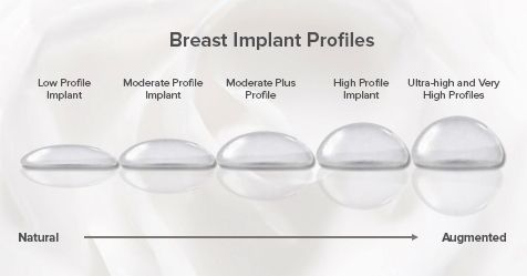 Los implantes mamarios tienen 5 grados de proyección o perfiles diferentes.