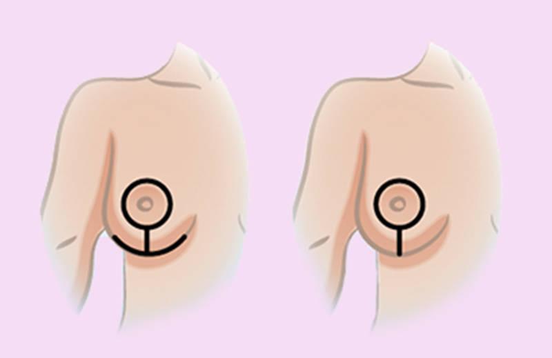 Cicatrices reducción de pecho Valencia: ancla (T invertida) y piruleta