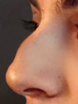 rinoplastia dorso nariz Valencia Dra. Moreda