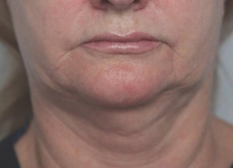 el estiramiento de cuello corrige flacidez y descolgamientos en el tercio inferior de la cara y el cuello