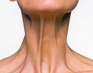 lifting de cuello o platismaplastia en Valencia Dra. Moreda