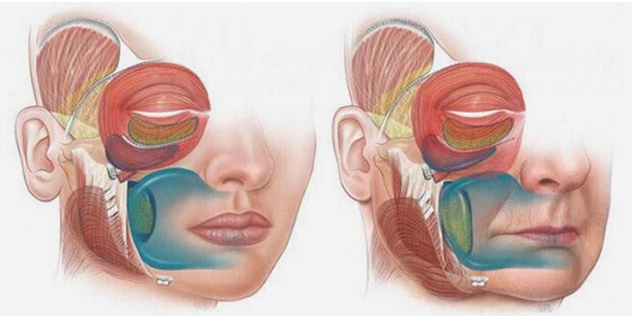 lifting-cuello-lifting-facial-inferior