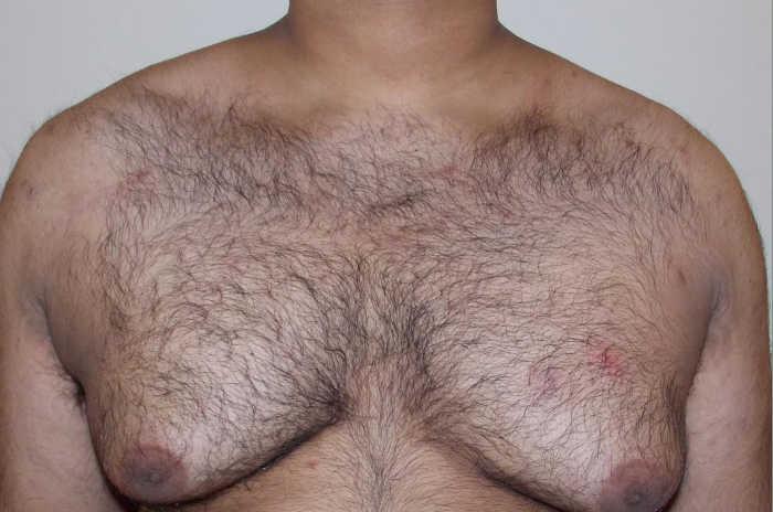 ginecomastia en valencia Dra Moreda: reduce tus pechos poco masculinos