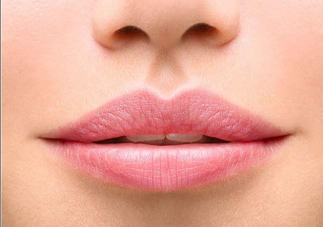 Aumento de labios con acido hialuronico en Valencia Dra. Moreda