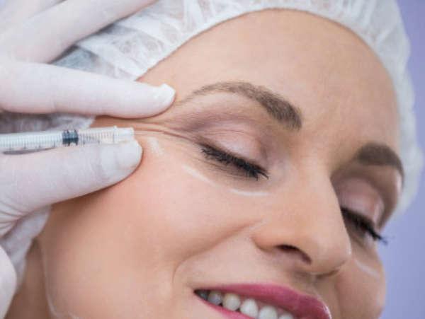 Botox elimina las patas de gallo