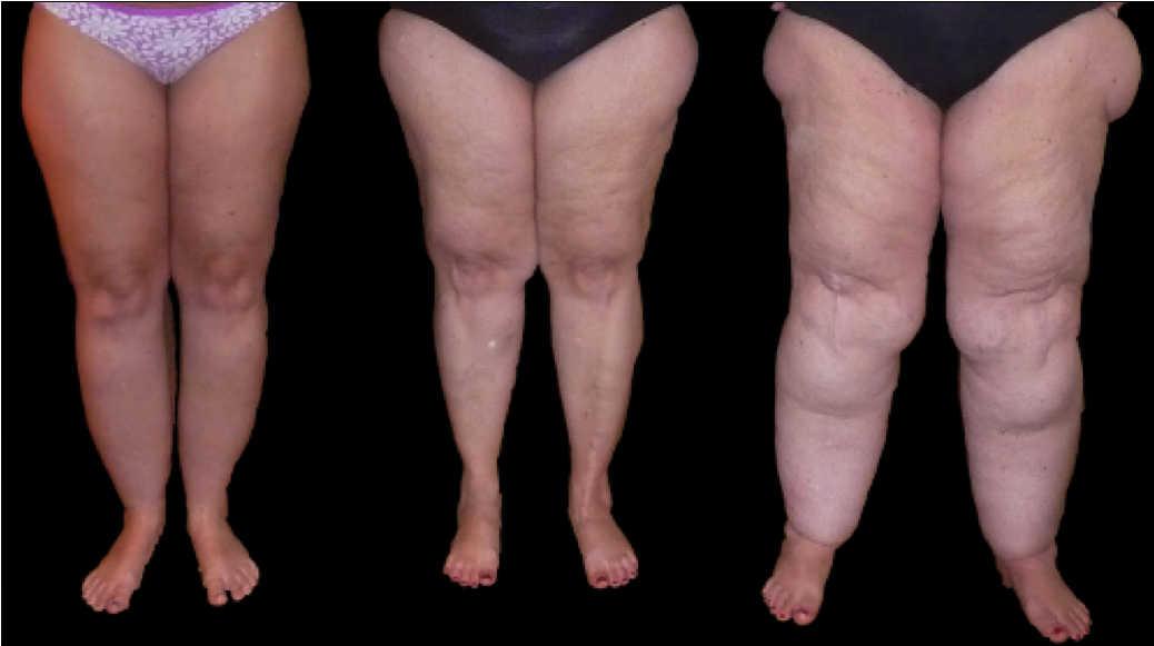lipedema en piernas: distintos estadios del linfedema
