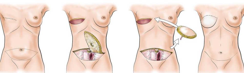 Reconstrucción mamaria con colgajo DIEP