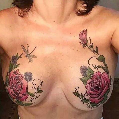 Tatuaje post reconstruccion mamaria