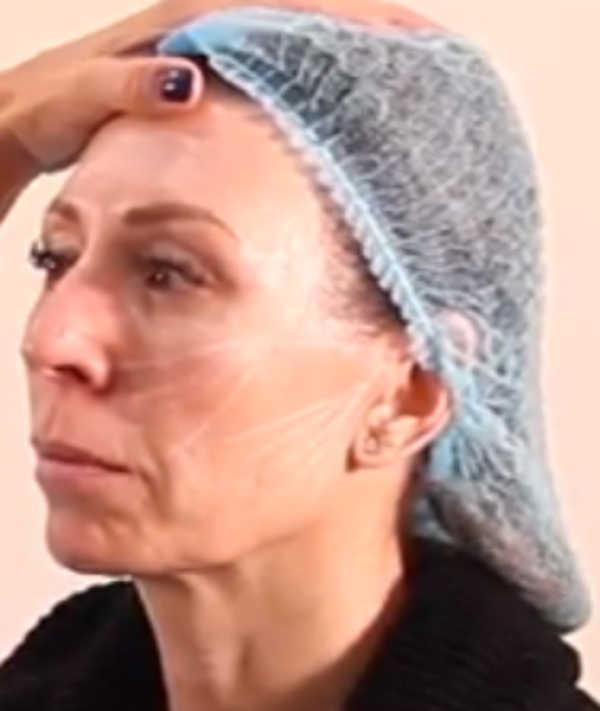 Hilos tensores ojos y surcos nasogenianos antes