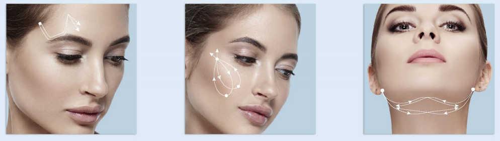 Hilos tensores para cejas, mejillas y papada