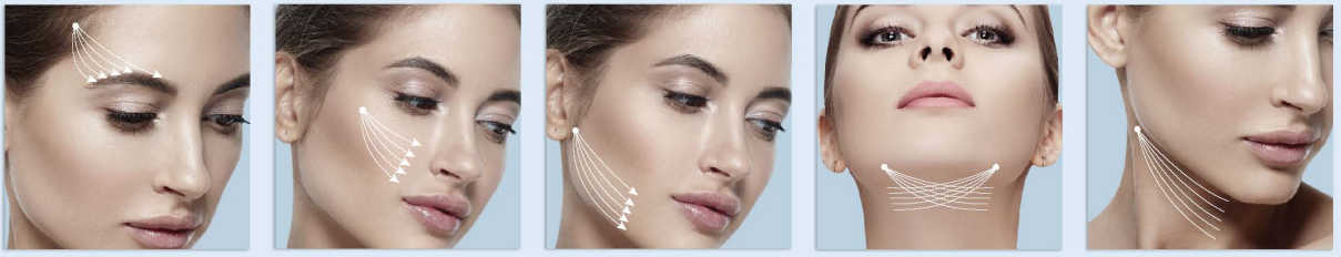 Hilos tensores revitalizacion facial