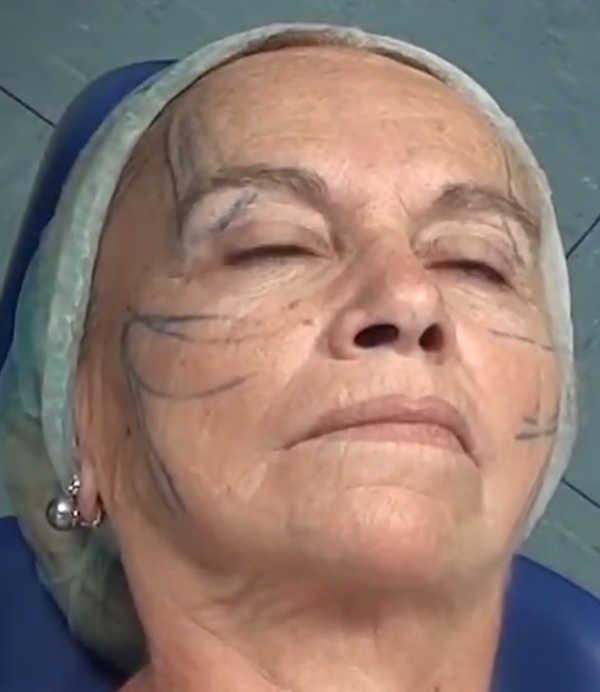 Antes de la colocación de los hilos tensores en el rostro