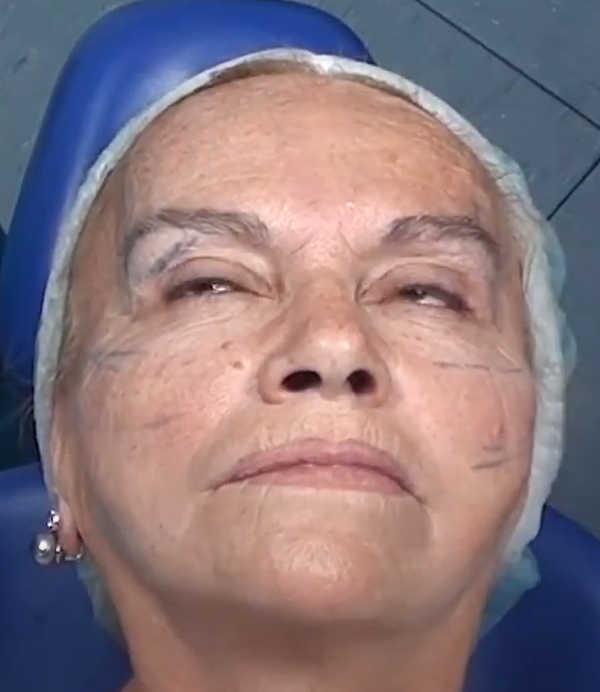 Hilos tensores en el rostro: después de la colocación