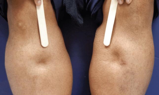 Como saber si tengo lipedema: sintomas