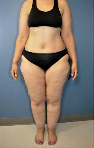 saber si tengo lipedema: aspecto físico mujer con lipedema
